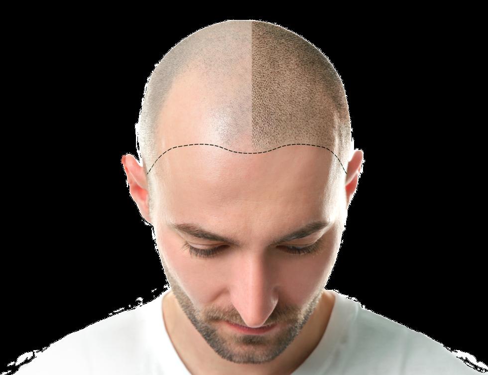 Hair transplant men New Jersey