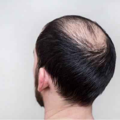 Minoxidil Hair Loss Prevention Dhi Panama