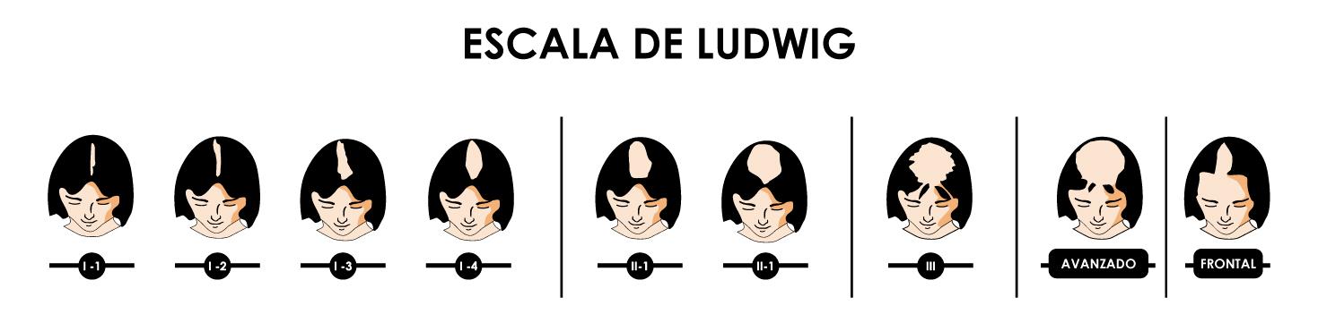 Escala de Ludwig