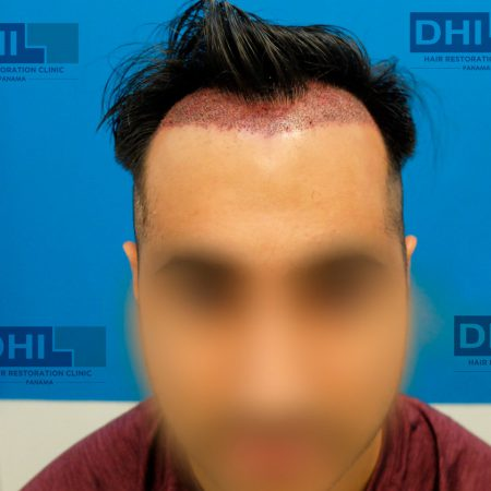 FUE-hair-restoratoin-surgery-2539-grafts-day-after-front