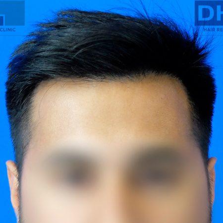 after-hair-transplant-timeline-final-result-2018
