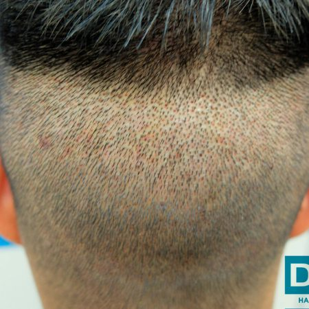 back-of-head-3-days-post-op-fue-hair-transplant-dr-hasson