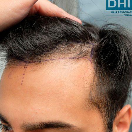 hair-transplant-timeline-patient-before-surgery-left-temple
