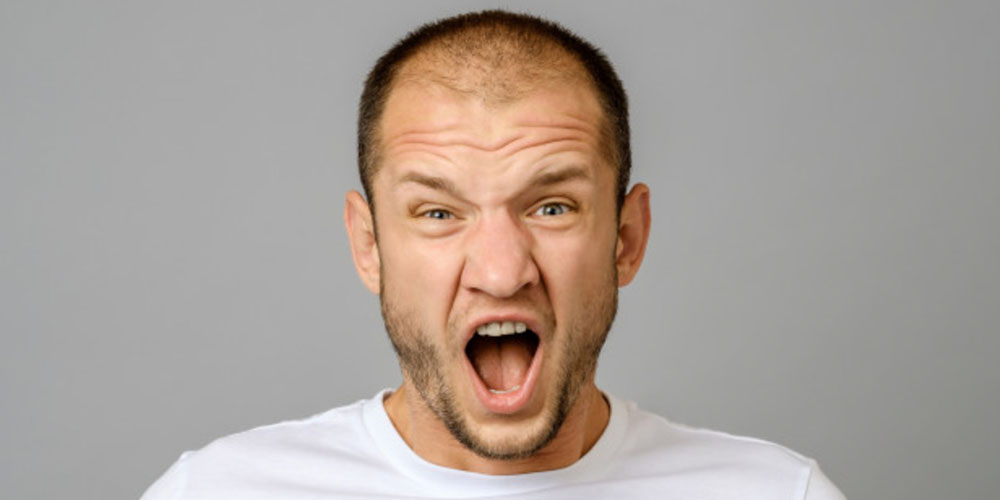 5 Señales de que sufres de Alopecia Androgénica