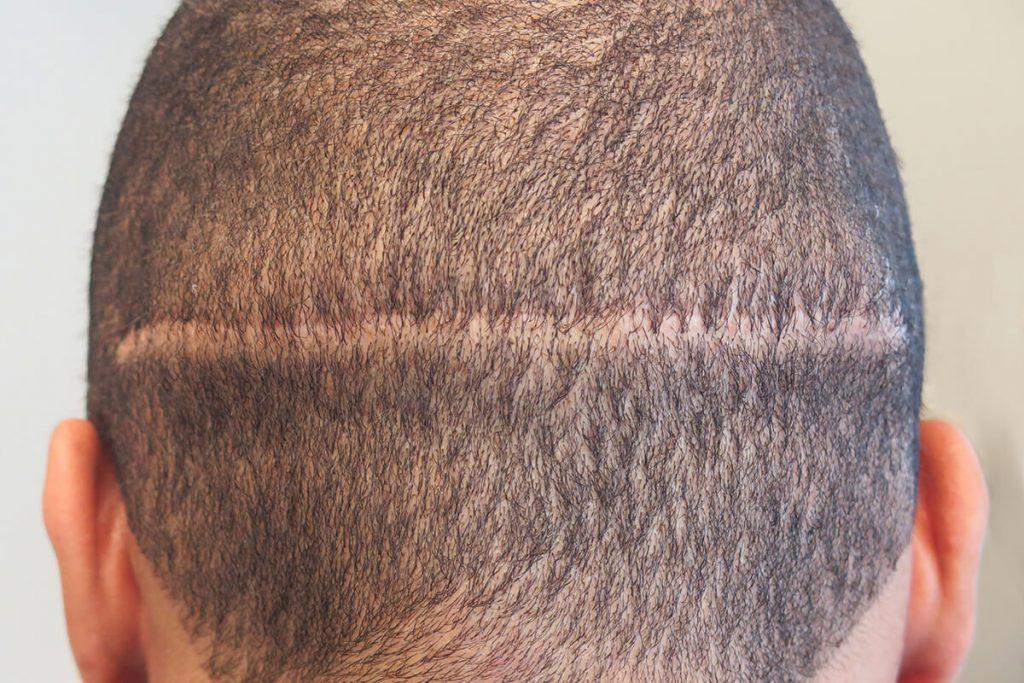 La verdad acerca del trasplante de cabello