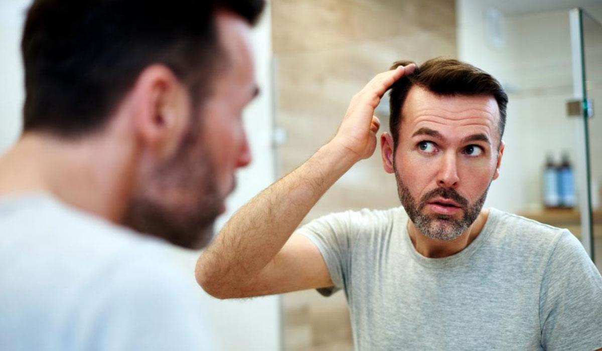 ¿Cuánto injerto pelo necesito para un trasplante?