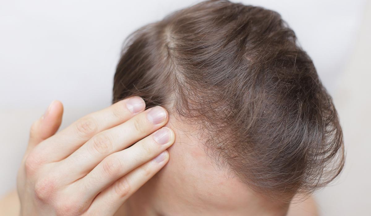 Es normal la picazón después del trasplante de cabello