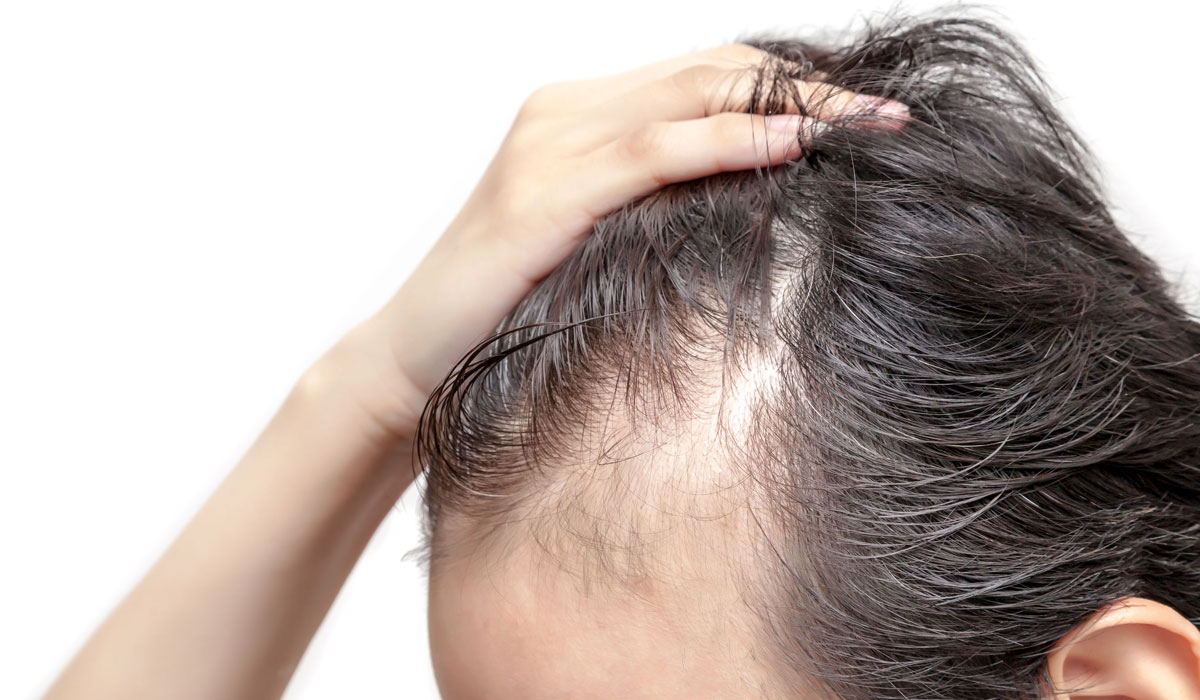 porque-retrocede-la-linea-de-cabello